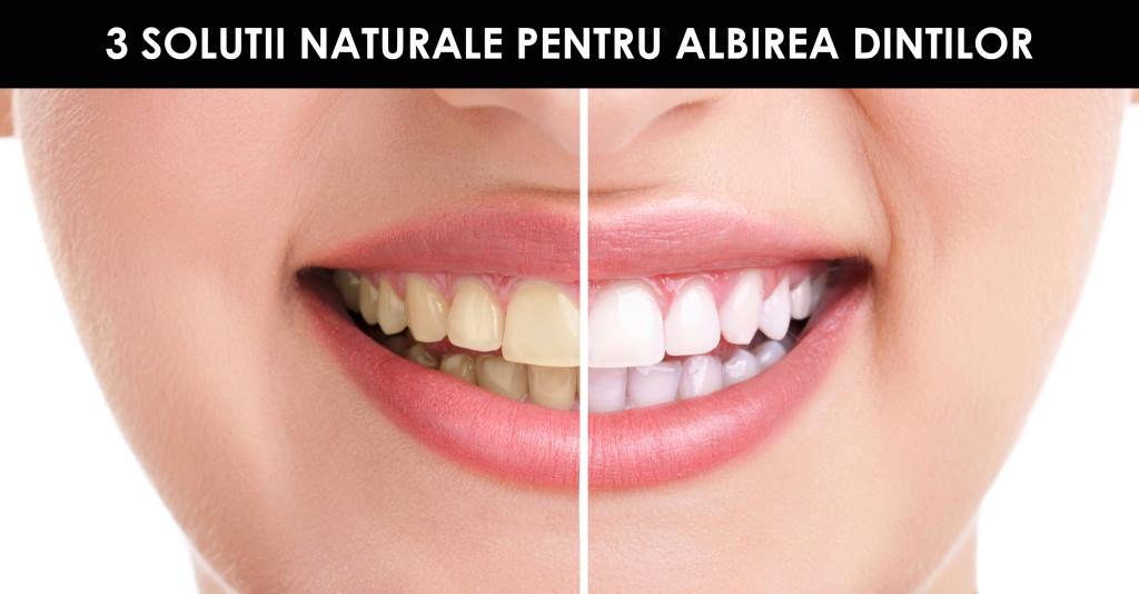 Solutii care albesc dintii acasa