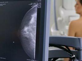Ce trebuie sa stim despre mamografie?